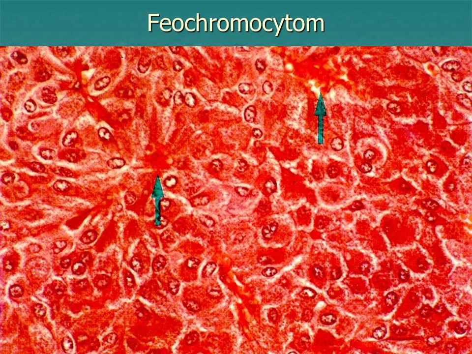 Feochromocytom