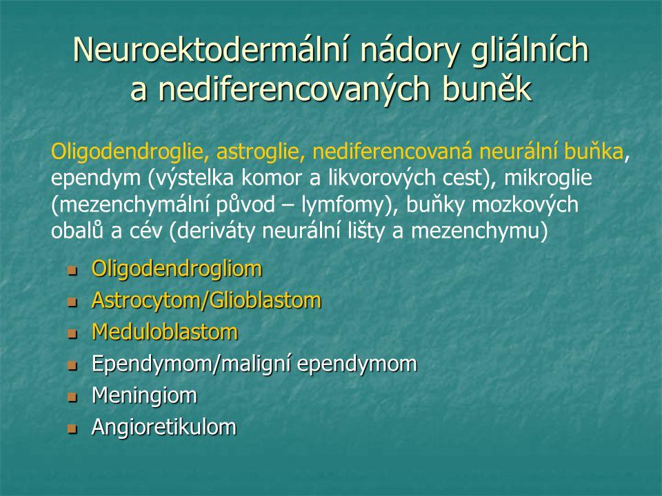 Neuroektodermální nádory gliálních a nediferencovaných buněk