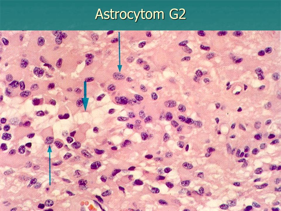 Astrocytom G2