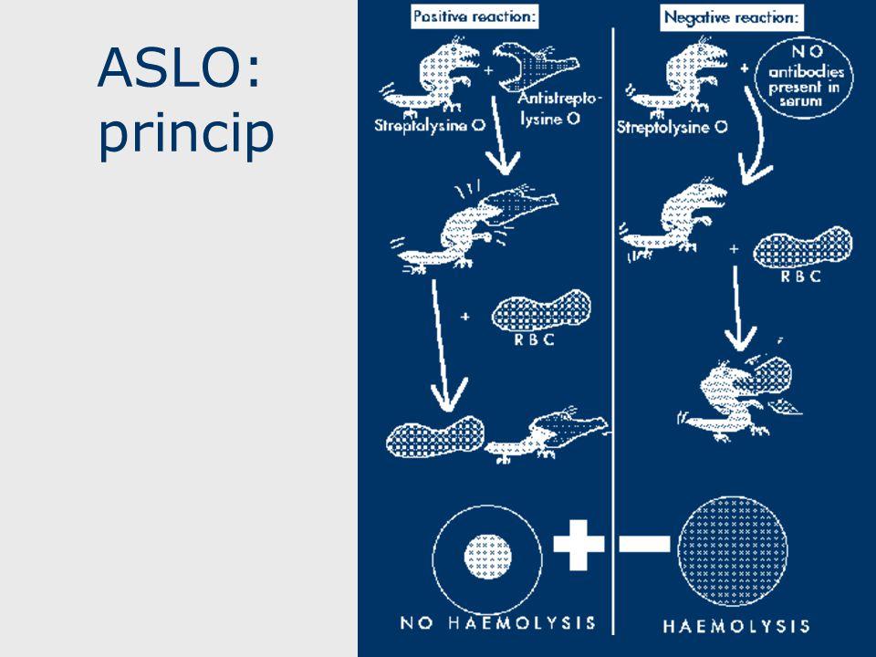 ASLO: princip