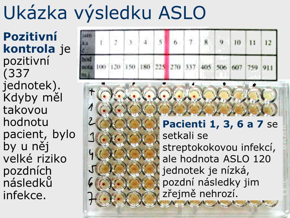 Ukázka výsledku ASLO
