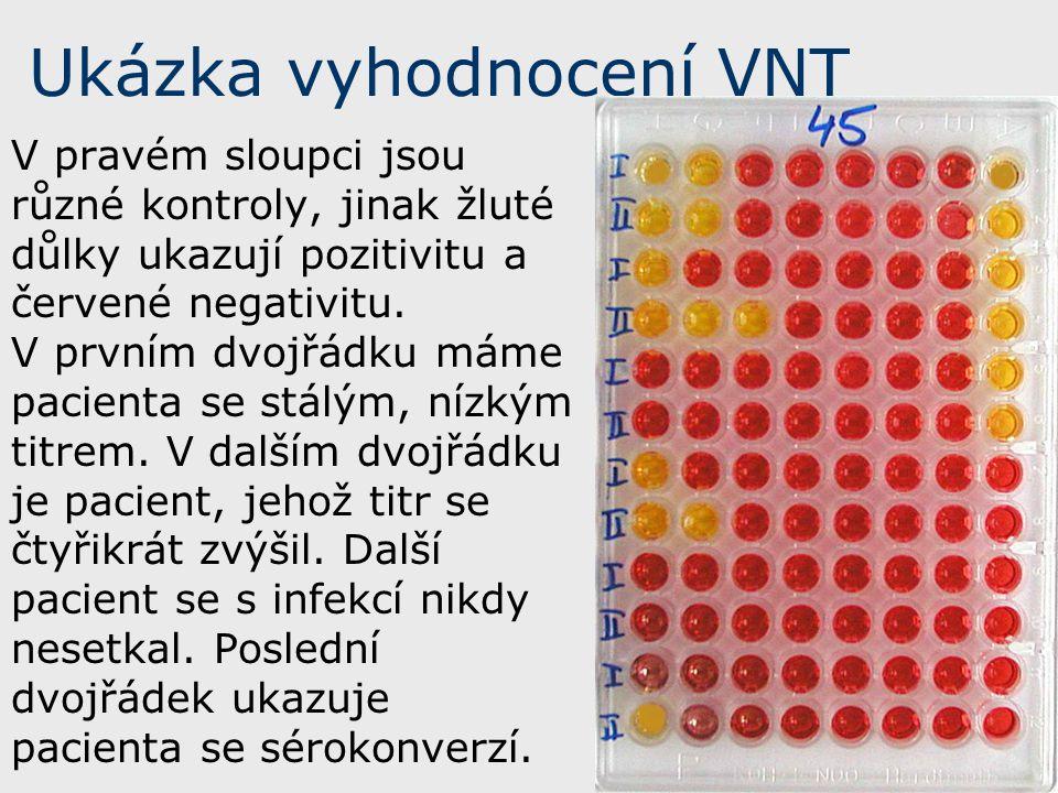 Ukázka vyhodnocení VNT