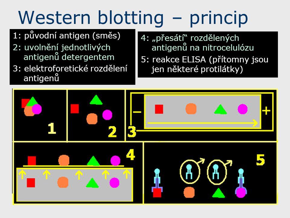Western blotting – princip