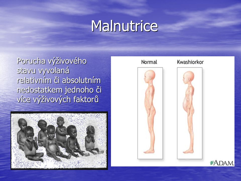 Malnutrice Porucha výživového stavu vyvolaná relativním či absolutním nedostatkem jednoho či více výživových faktorů.