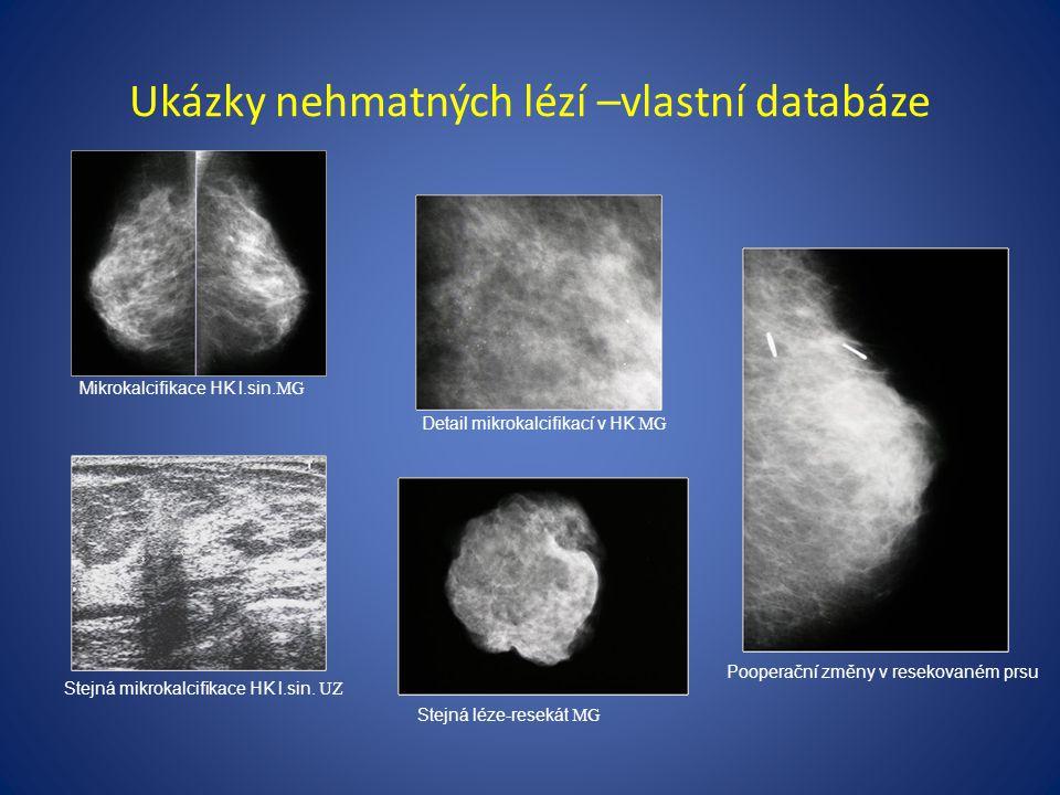 Ukázky nehmatných lézí –vlastní databáze