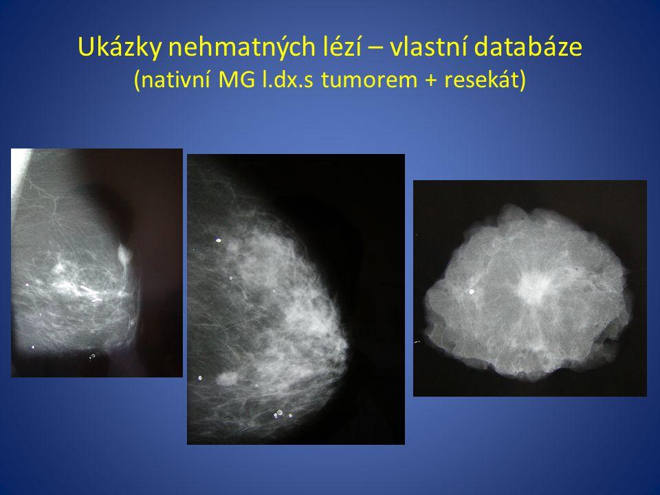 Ukázky nehmatných lézí – vlastní databáze (nativní MG l. dx