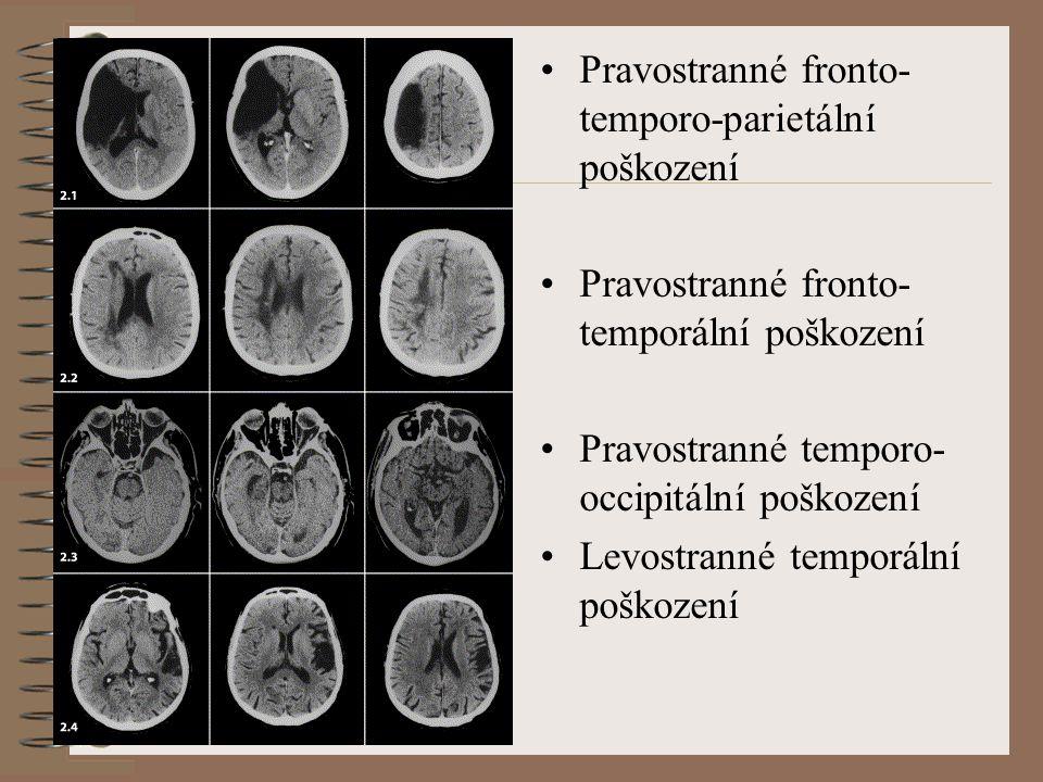 Pravostranné fronto-temporo-parietální poškození