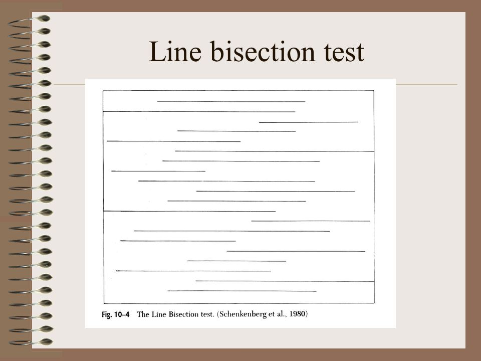 Line bisection test