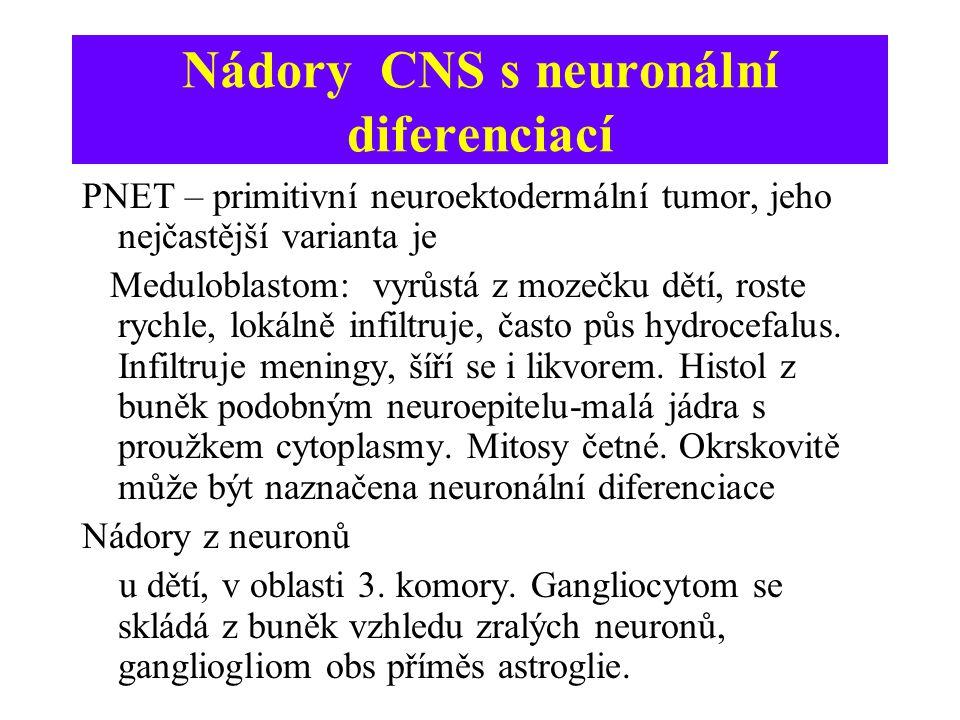 Nádory CNS s neuronální diferenciací