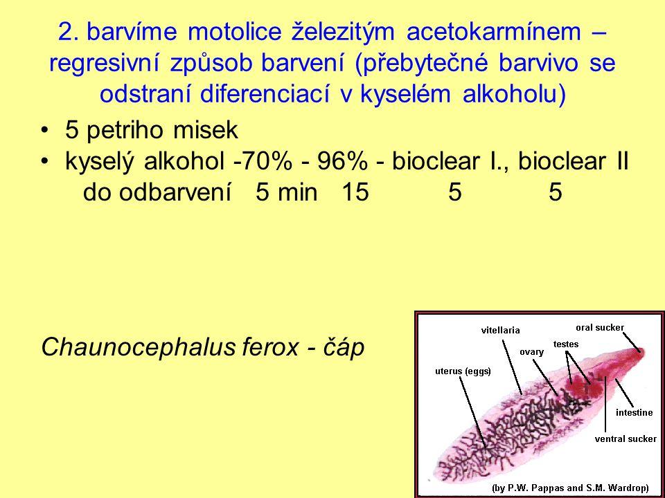 2. barvíme motolice železitým acetokarmínem – regresivní způsob barvení (přebytečné barvivo se odstraní diferenciací v kyselém alkoholu)