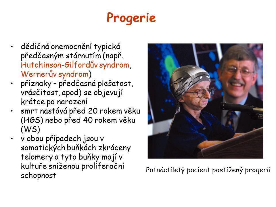 Progerie dědičná onemocnění typická předčasným stárnutím (např. Hutchinson-Gilfordův syndrom, Wernerův syndrom)