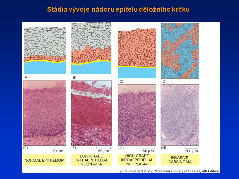 Stádia vývoje nádoru epitelu děložního krčku