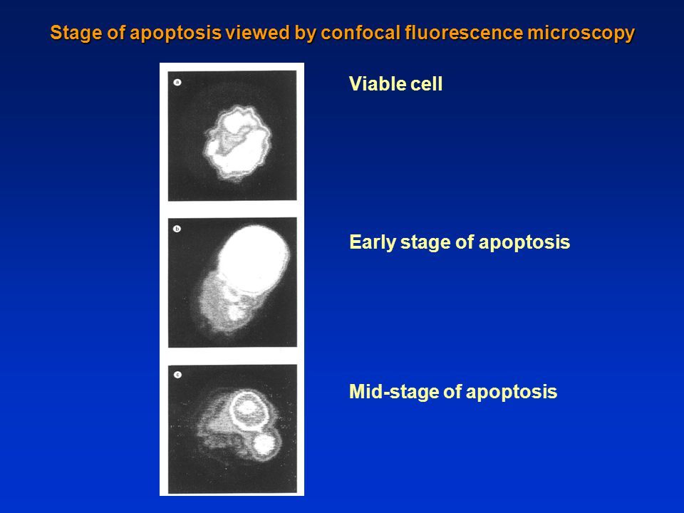 Stage of apoptosis viewed by confocal fluorescence microscopy