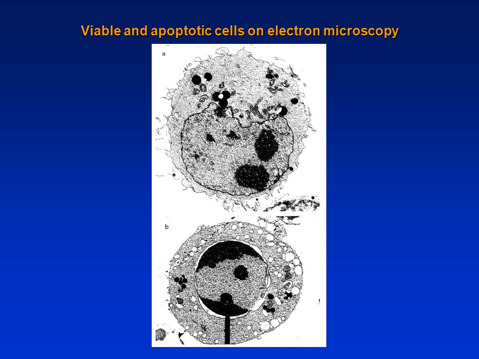 Viable and apoptotic cells on electron microscopy