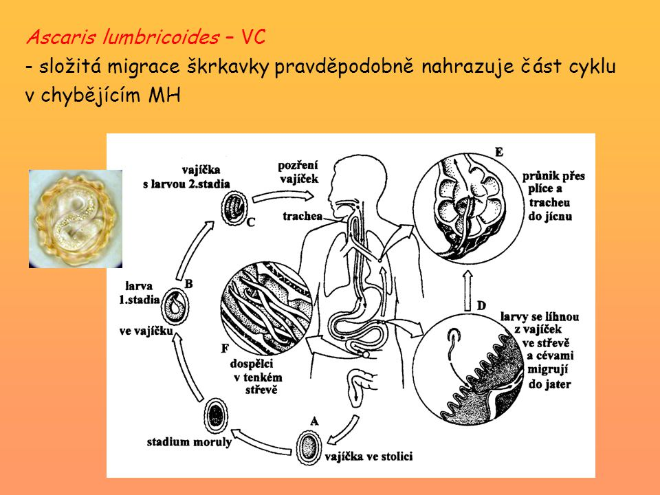 Ascaris lumbricoides – VC