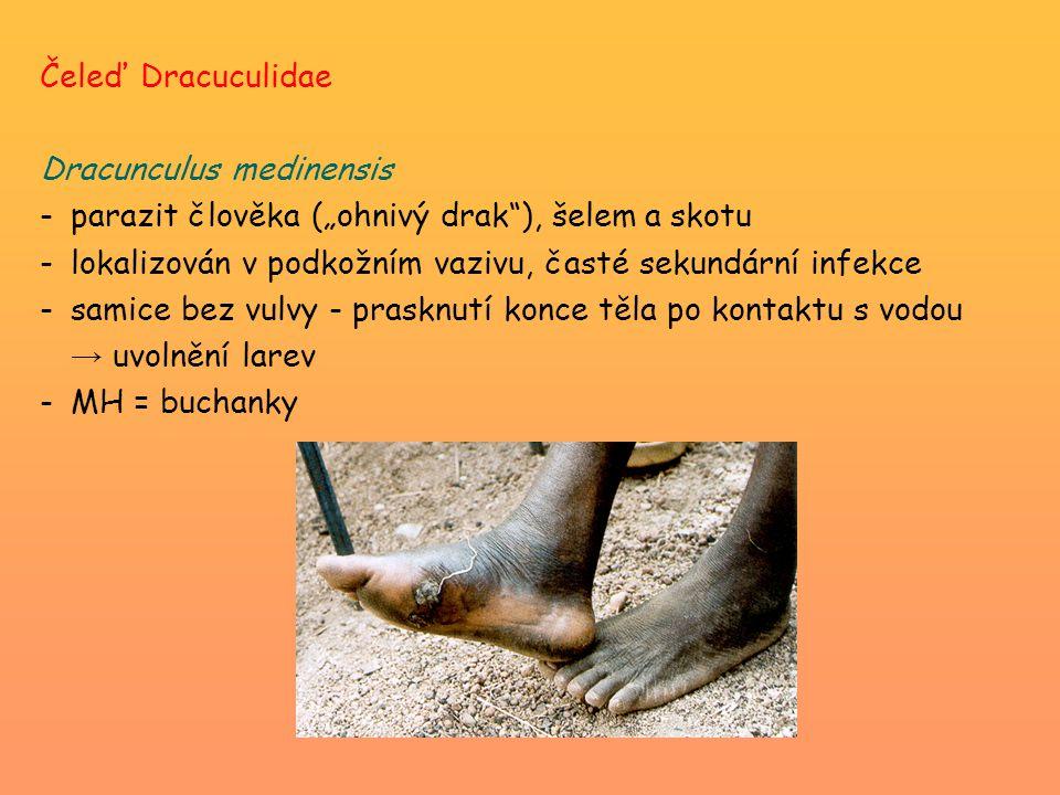 """Čeleď Dracuculidae Dracunculus medinensis. parazit člověka (""""ohnivý drak ), šelem a skotu. lokalizován v podkožním vazivu, časté sekundární infekce."""