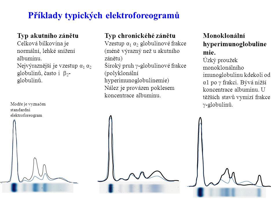Příklady typických elektroforeogramů