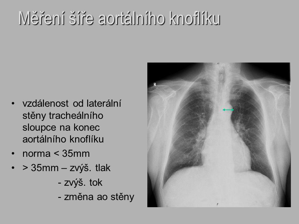 Měření šíře aortálního knoflíku