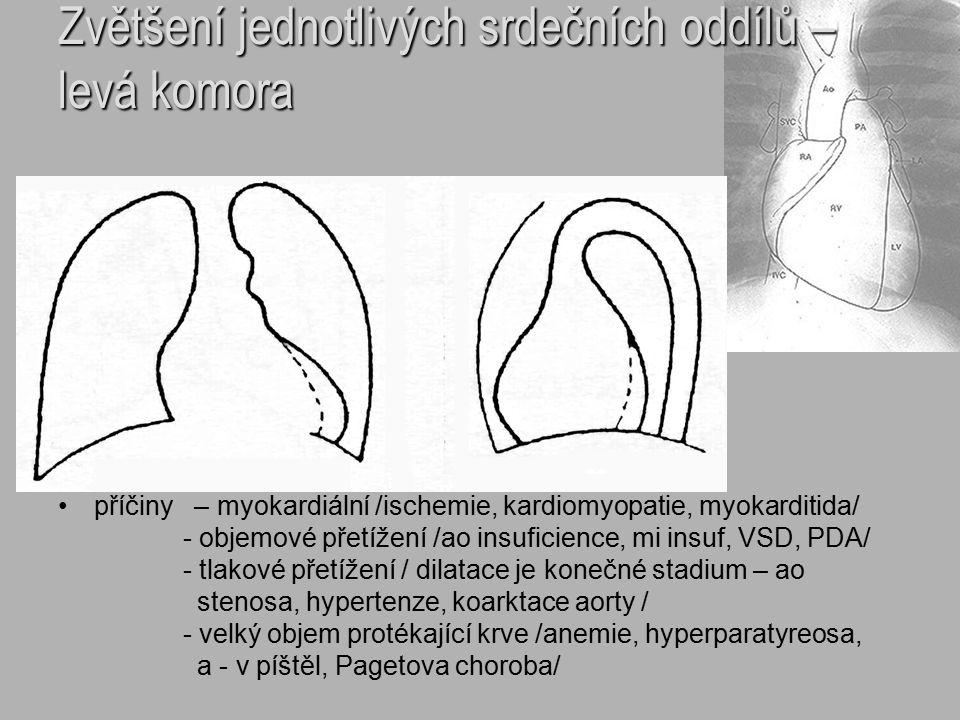 Zvětšení jednotlivých srdečních oddílů – levá komora