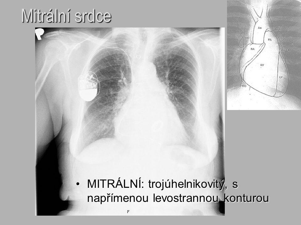 Mitrální srdce MITRÁLNÍ: trojúhelnikovitý, s napřímenou levostrannou konturou