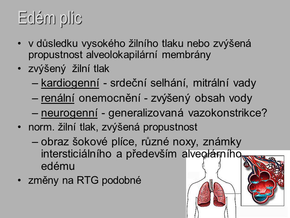 Edém plic kardiogenní - srdeční selhání, mitrální vady