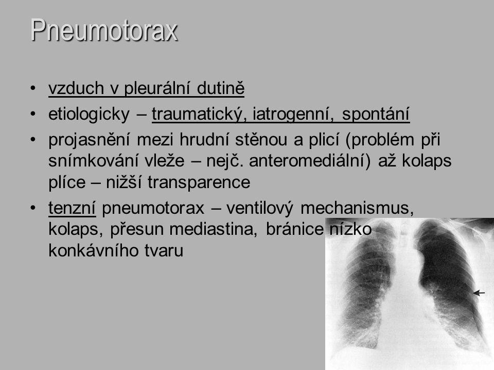 Pneumotorax vzduch v pleurální dutině