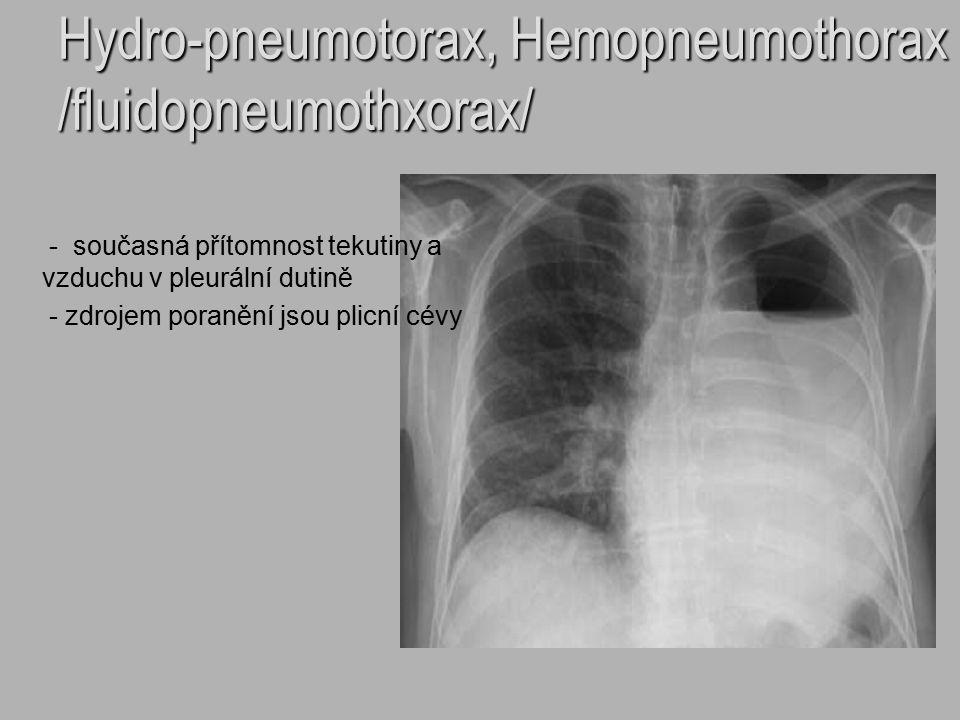 Hydro-pneumotorax, Hemopneumothorax /fluidopneumothxorax/