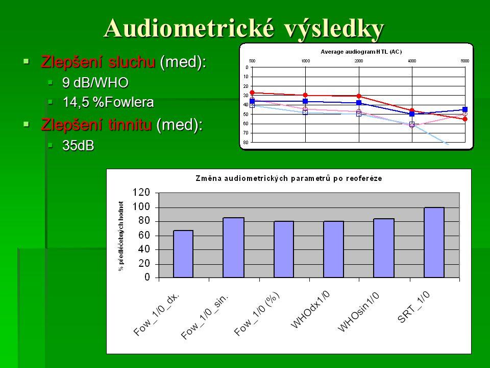 Audiometrické výsledky