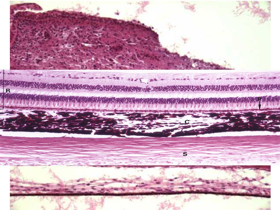 Tunica vasculosa (media) Cévnatka = Choroidea