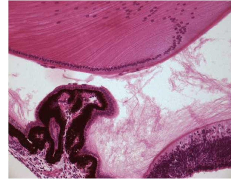 Tunica vasculosa (media) Řasnaté těleso = Corpus ciliare