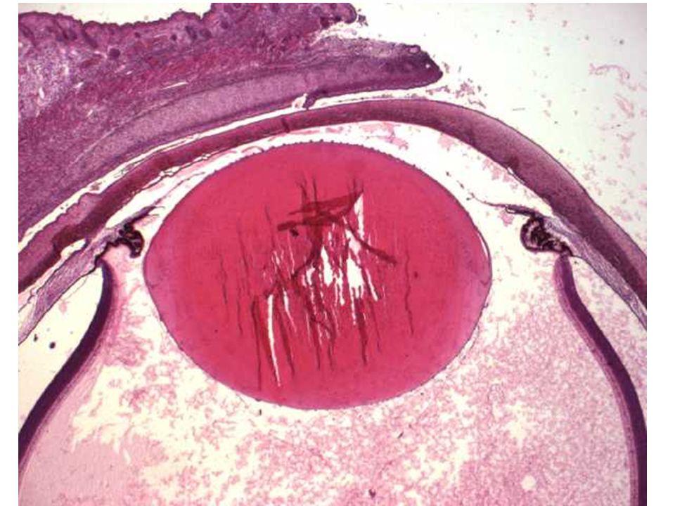 Oční komory = Camerae bulbi
