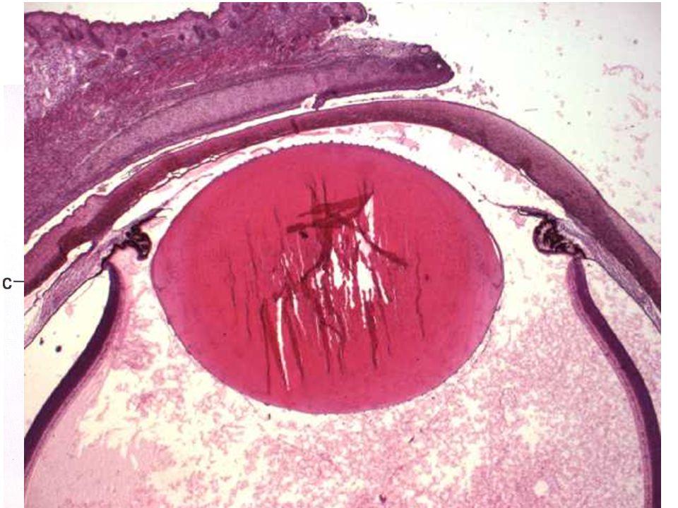 Víčka = Palpebrae vnější kožní část m. orbicularis oculi