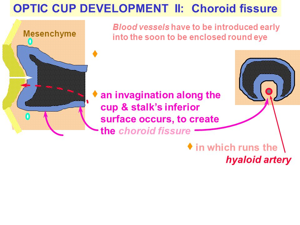 OPTIC CUP DEVELOPMENT II: Choroid fissure