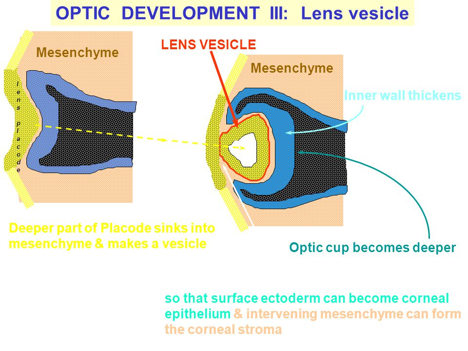 OPTIC DEVELOPMENT III: Lens vesicle