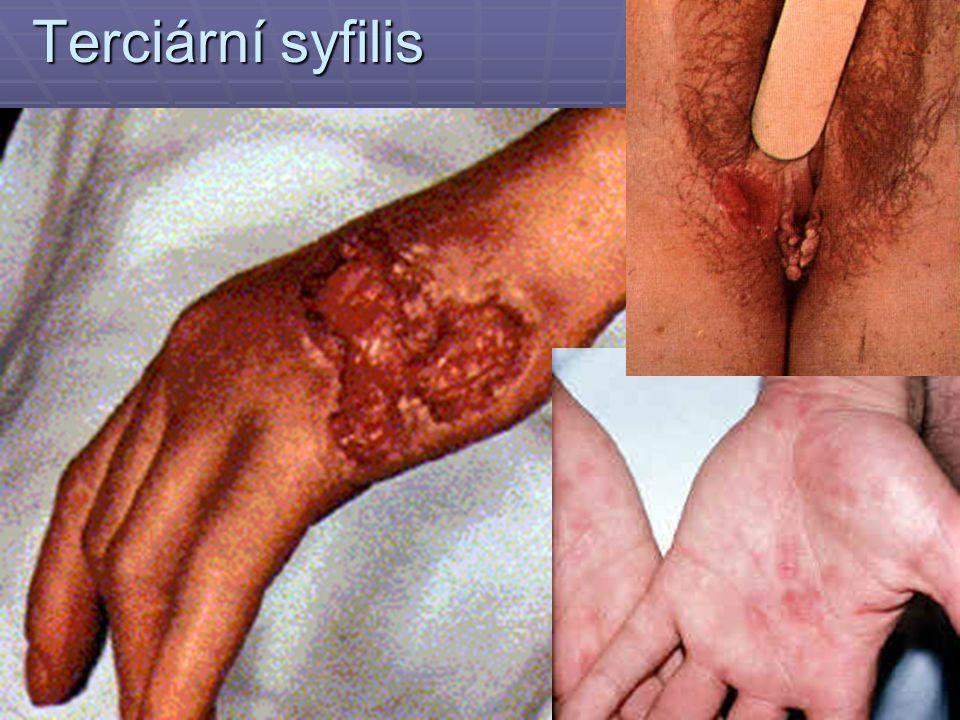 Terciární syfilis