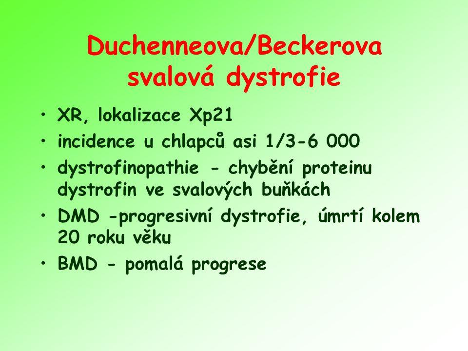 Duchenneova/Beckerova svalová dystrofie