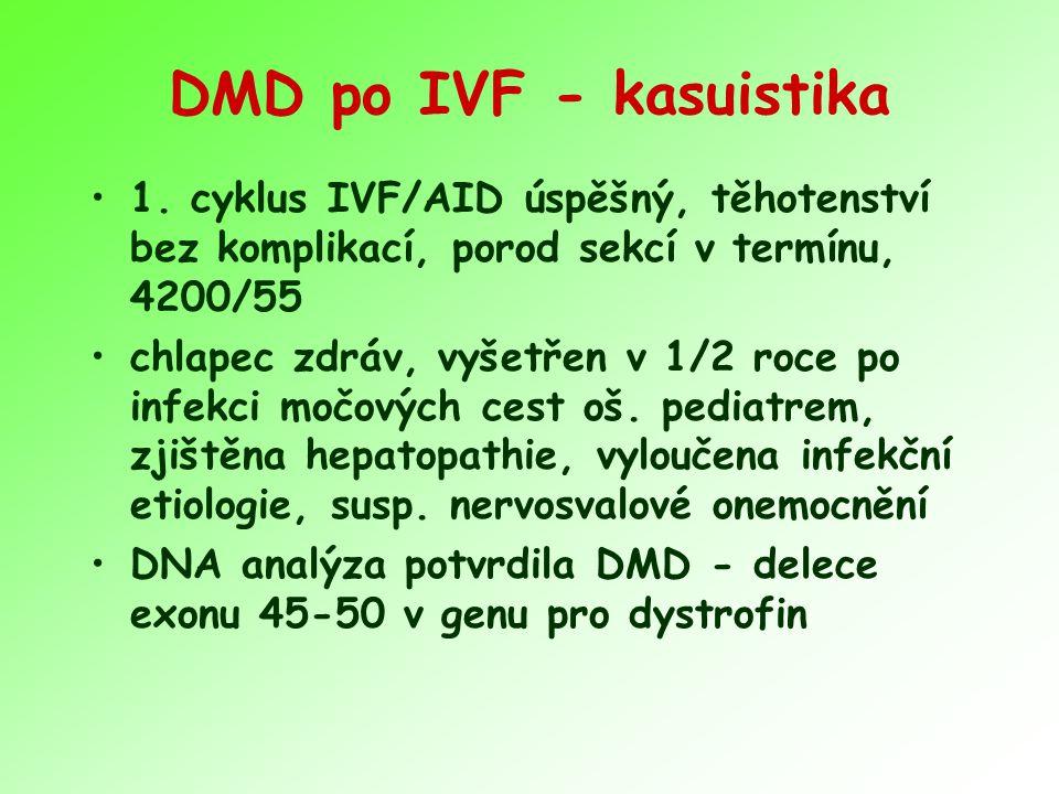 DMD po IVF - kasuistika 1. cyklus IVF/AID úspěšný, těhotenství bez komplikací, porod sekcí v termínu, 4200/55.