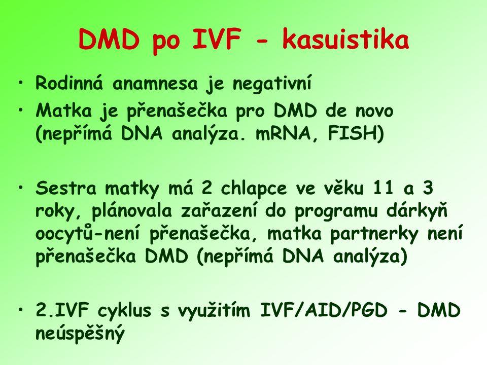 DMD po IVF - kasuistika Rodinná anamnesa je negativní