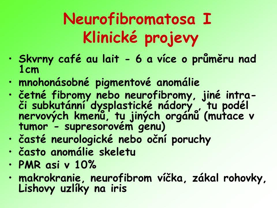 Neurofibromatosa I Klinické projevy