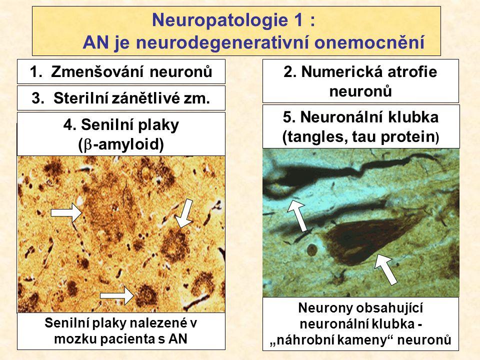 Neuropatologie 1 : AN je neurodegenerativní onemocnění