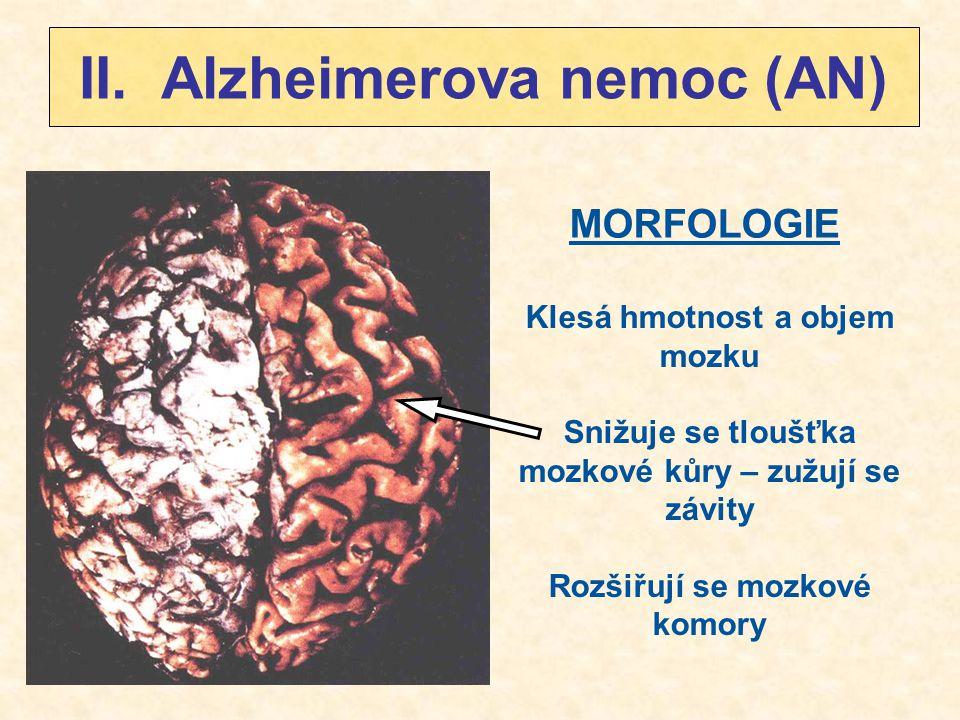 II. Alzheimerova nemoc (AN)