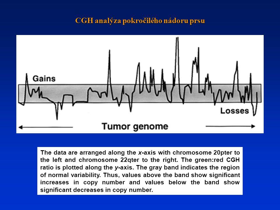 CGH analýza pokročilého nádoru prsu