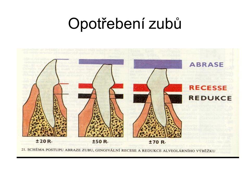Opotřebení zubů