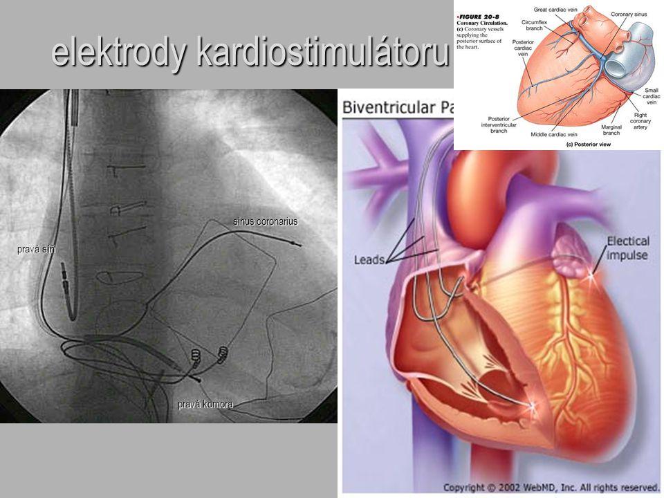 elektrody kardiostimulátoru