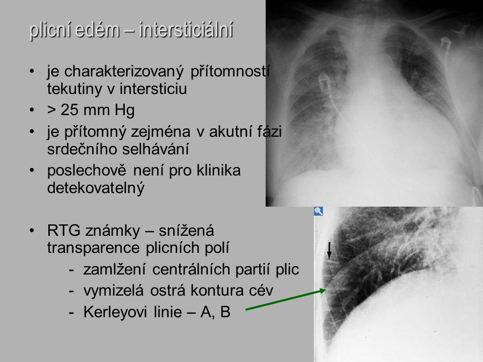 plicní edém – intersticiální