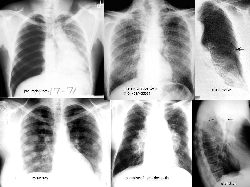 pneumonektomie intersticiální postižení plioc - sarkoidóza. pneumotorax. oboustranná lymfadenopatie.