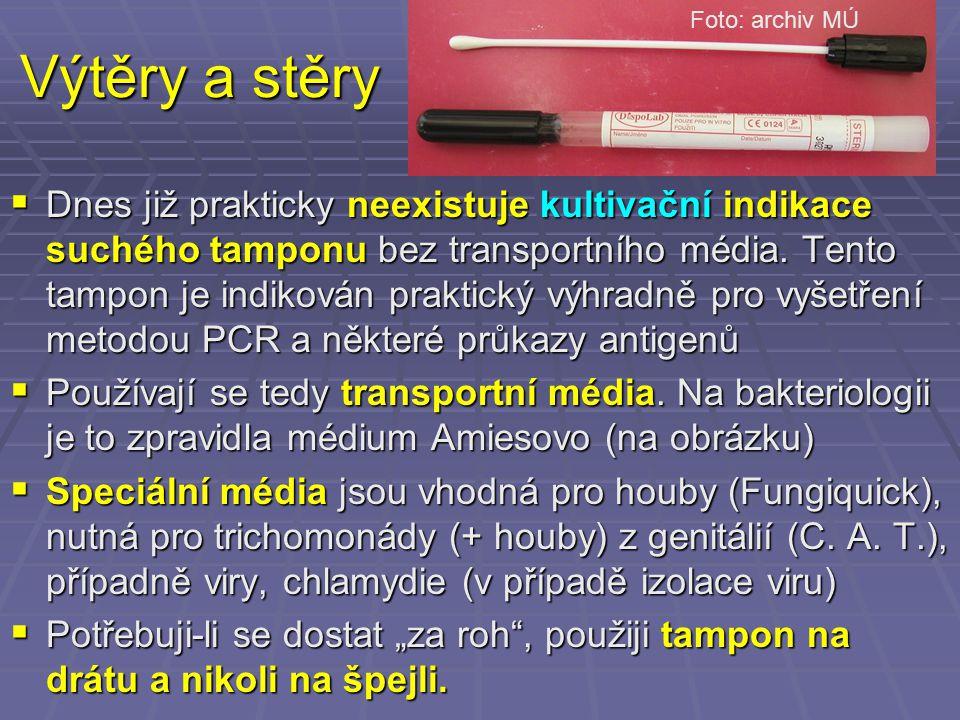 Foto: archiv MÚ Výtěry a stěry.