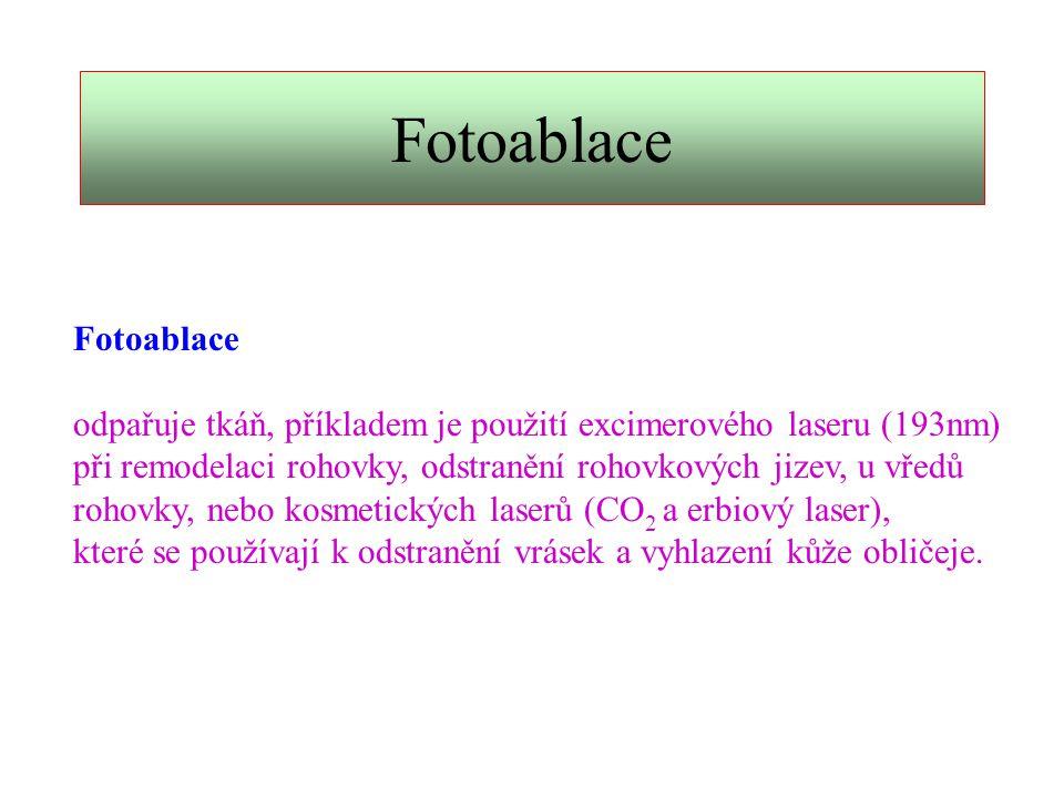 Fotoablace Fotoablace