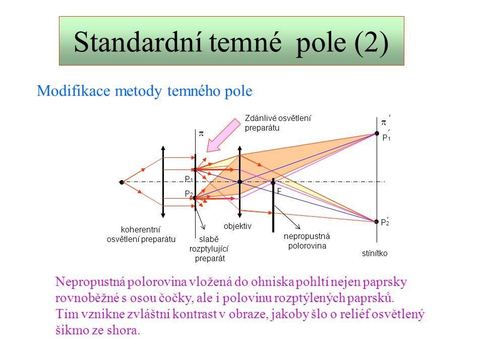 Standardní temné pole (2)