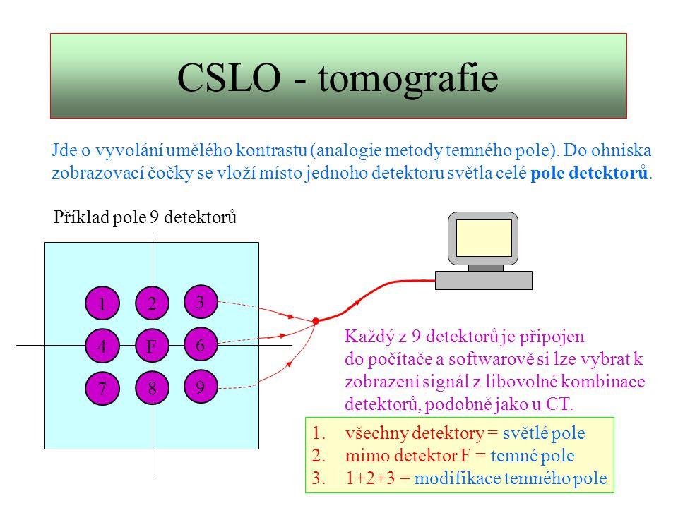 CSLO - tomografie Jde o vyvolání umělého kontrastu (analogie metody temného pole). Do ohniska.